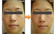 の顔の整形(輪郭・顎の整形)の症例写真