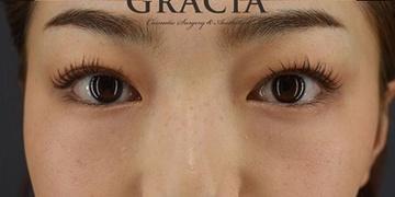 GRACIA clinic(グラシアクリニック)の目元整形・クマ治療の症例写真[アフター]