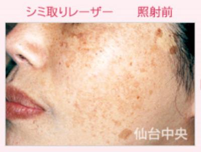 シミ取りレーザーによる顔のシミ取りの症例写真[ビフォー]