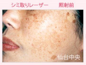 仙台中央クリニックのシミ治療(シミ取り)・肝斑・毛穴治療の症例写真[ビフォー]