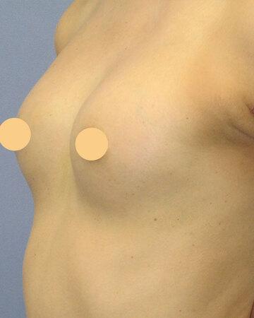 湘南美容クリニック高崎院の豊胸手術(胸の整形)の症例写真[アフター]
