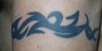 SELECT CLINIC(セレクトクリニック)のタトゥー除去(刺青・入れ墨を消す治療)の症例写真[ビフォー]
