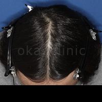 桜花クリニック HARG開発者のAGA・薄毛治療院の薄毛治療の症例写真[アフター]