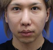 オザキクリニックLUXE新宿の症例写真[アフター]