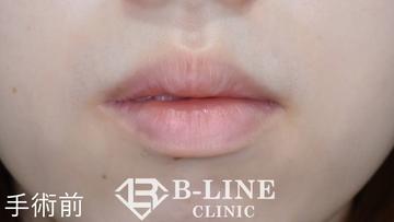 B-LINE CLINIC (ビーラインクリニック)の口もと、唇の整形の症例写真[ビフォー]