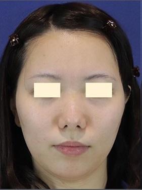 銀座長瀬クリニックの脂肪吸引の症例写真[ビフォー]