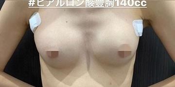 ルラ美容クリニック 高田馬場院の豊胸手術(胸の整形)の症例写真[アフター]