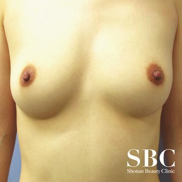 湘南美容クリニック品川院の豊胸手術(胸の整形)の症例写真[ビフォー]