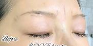 L.O.V.E beauty clinic(ラブビューティークリニック)の症例写真[ビフォー]