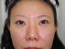 眼瞼下垂 術前&術後4か月の症例写真[アフター]