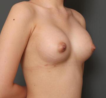 オザキクリニック LUXE新宿の豊胸・胸の整形の症例写真[アフター]