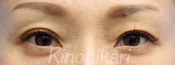 樹のひかり 形成外科・皮ふ科の目元整形・クマ治療の症例写真[アフター]