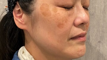ウィクリニック 大宮院のシミ取り・肝斑・毛穴治療の症例写真[ビフォー]