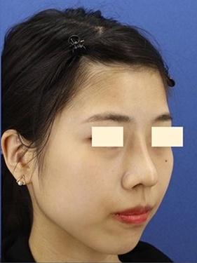 プロテーゼ、鼻先の形成(肋軟骨) 術後1ヶ月[アフター]
