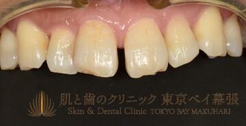 肌と歯のクリニック 東京ベイ幕張の矯正歯科の症例写真[ビフォー]