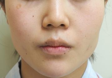 タウン形成外科クリニックの輪郭・顎の整形の症例写真[ビフォー]