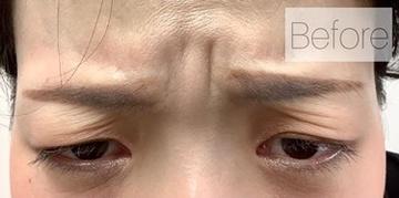 La Clinique Ginza(ラ クリニック銀座)の顔のしわ・たるみの整形(リフトアップ手術)の症例写真[ビフォー]