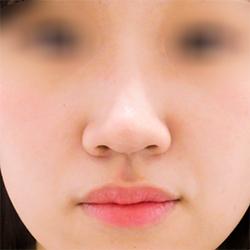 【横浜】柴田貴志/鼻先へのヒアルロン酸の症例(クレヴィエル)の症例写真[ビフォー]