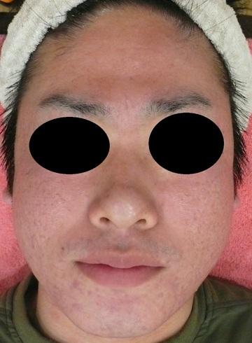 広島プルミエクリニックのニキビ治療・ニキビ跡の治療の症例写真[アフター]