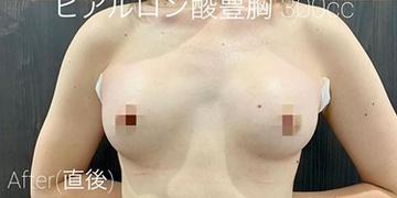 ルラ美容クリニック高田馬場院の豊胸手術(胸の整形)の症例写真[アフター]