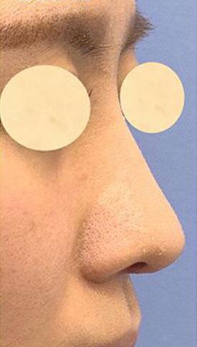 鼻尖形成、軟骨移植、鼻中隔延長、鼻柱下降、SBCプロテーゼの症例写真[アフター]