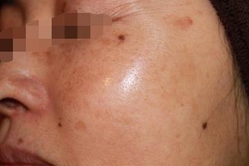 クリニックDo田園調布のシミ治療(シミ取り)・肝斑・毛穴治療の症例写真[アフター]