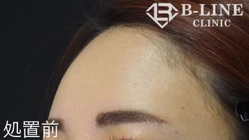 B-LINE CLINIC (ビーラインクリニック)の顔の整形(輪郭・顎の整形)の症例写真[ビフォー]
