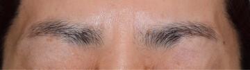 春山クリニックの顔のしわ・たるみの整形(リフトアップ手術)の症例写真[アフター]