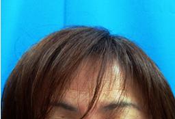 ガーデンクリニックの薄毛治療・AGA・発毛の症例写真[アフター]