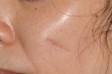 の傷跡治療、ケロイドの症例写真[ビフォー]