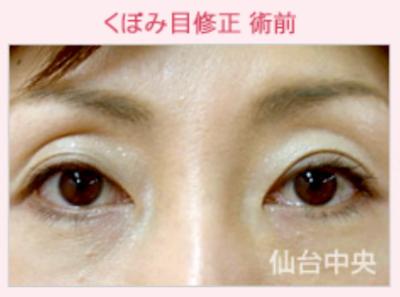 くぼみ目ヒアルロン酸注入、上まぶたの窪みを治したい[ビフォー]