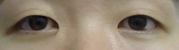 TCB 東京中央美容外科の目・二重の整形の症例写真[ビフォー]