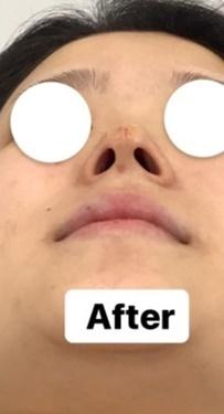 東郷美容形成外科 福岡の鼻の整形の症例写真[アフター]