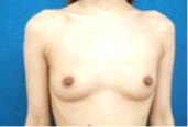 ガーデンクリニックの豊胸手術(胸の整形)の症例写真[ビフォー]