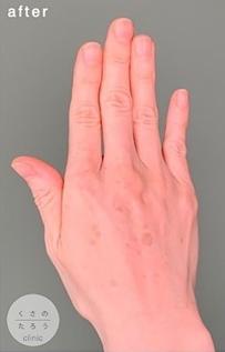 くさのたろうクリニックのアンチエイジング・美容点滴の症例写真[アフター]