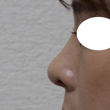 しらさぎ形成クリニックの鼻の整形の症例写真[アフター]