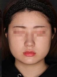 SELECT CLINIC(セレクトクリニック)の輪郭・顎の整形の症例写真[アフター]