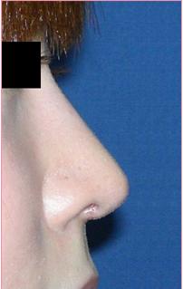 ■鼻尖形成術[アフター]
