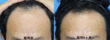 樹のひかり 形成外科・皮ふ科の薄毛治療・AGA・発毛の症例写真