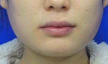 TCB 東京中央美容外科 京都院の顔の整形(輪郭・顎の整形)の症例写真[アフター]