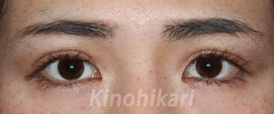 二重埋没法(両目・2点どめ)術前・術後2週間(開眼・閉眼時)の症例写真[アフター]