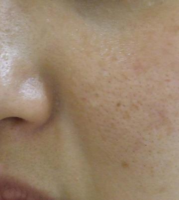 さくら美容クリニックのシミ治療(シミ取り)・肝斑・毛穴治療の症例写真[アフター]