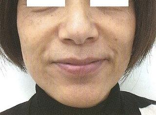 若返り注入治療「ヒアルロン酸でリフトアップ」の症例写真[アフター]
