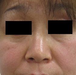 はなふさ美容皮膚科の顔のしわ・たるみの整形(リフトアップ手術)の症例写真[ビフォー]