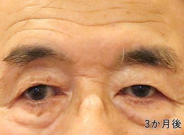 ローズマリークリニックの目・二重の整形の症例写真[アフター]