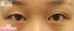 【埋没二重法】クイックコスメティークダブル(術後1週間)の症例写真