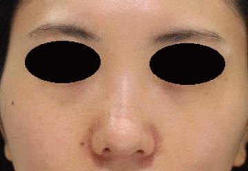 すなおクリニックの鼻の整形の症例写真[アフター]