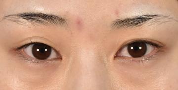 ウェンデルクリニックの目・二重の整形の症例写真[ビフォー]