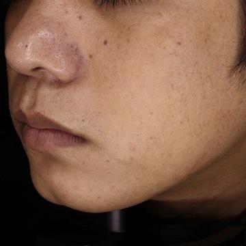 ReVIOS(レヴィオス)の医療脱毛の症例写真[アフター]