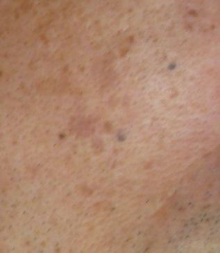 CO2フラクショナルレーザーによるシミ治療の症例写真[アフター]